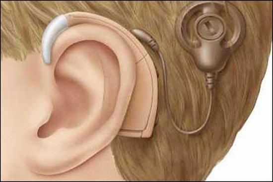 حلزون شنوایی