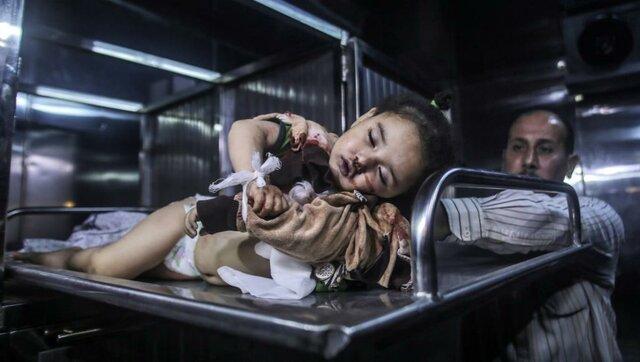 کودک شهید شده در غزه