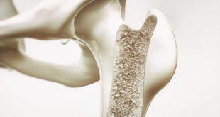 Bone density