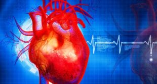 Heart disease and stroke